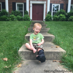 How To Survive A Toddler Fracture During Summer