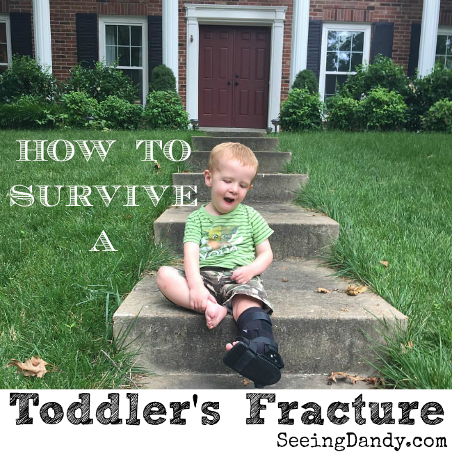 toddlersfracture